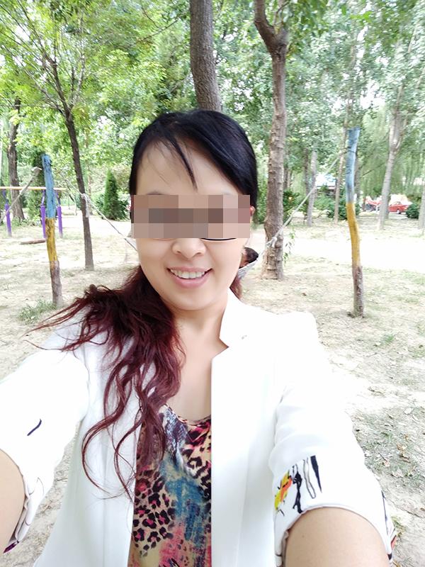 瑞丽快3开奖结果,女子使用斑消宝祛斑不成反长一脸黑斑 柳岩曾代言