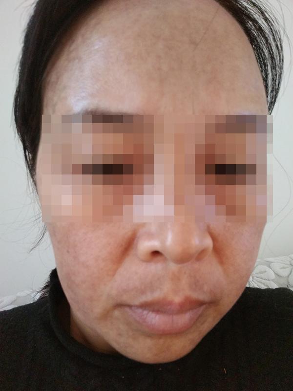 女子使用斑消宝祛斑不成反长一脸黑斑 柳岩曾代言